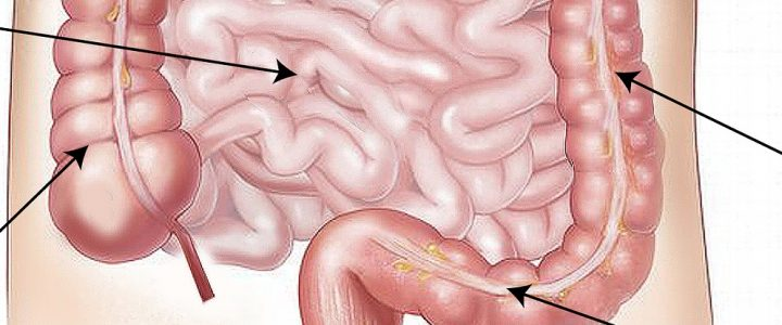 Wrzodziejące zapalenie jelita grubego (colitis ulcerosa)